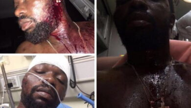 Criss Waddle's Showboy mercilessly beaten up, fears deportation